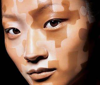 vitiligo Consejos para cuidar una piel con vitíligo