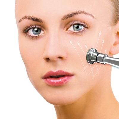 Microdermabrasión, un tratamiento básico para limpiar la piel