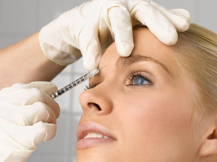 ¿Botox contra la depresión?