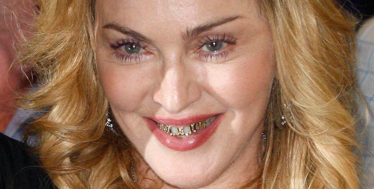 ¿Tatuajes en los dientes? Llega la moda Tateeth