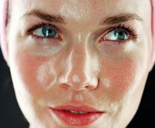 Consejos para cuidar una piel grasa