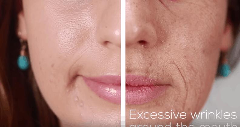 Lo que puede hacer el tabaco en tu rostro